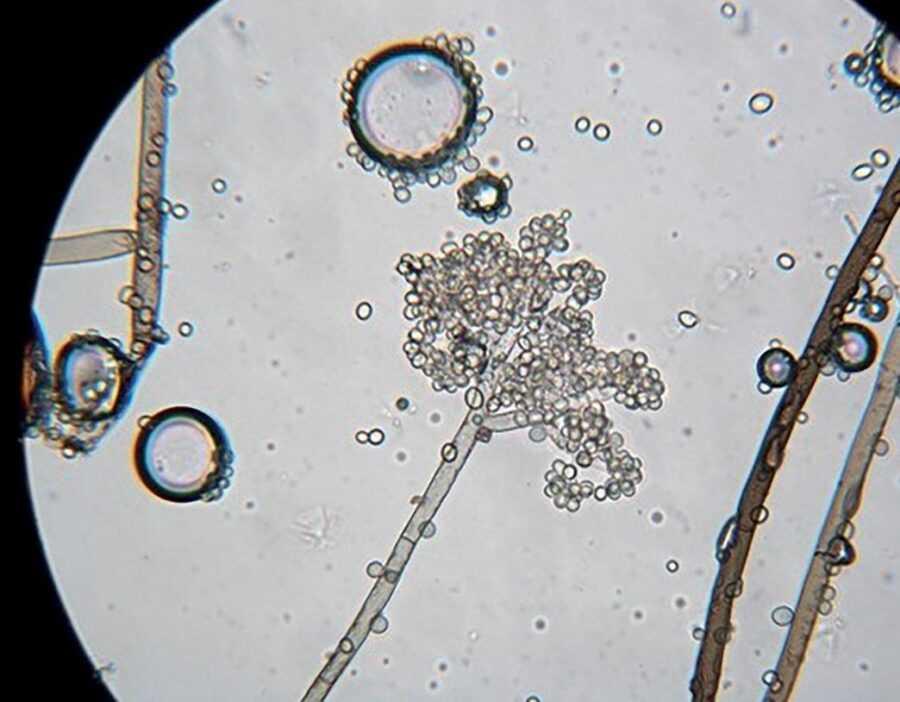 Рис. 3. Кластерні спори Botrytis cinerea при великому збільшенні